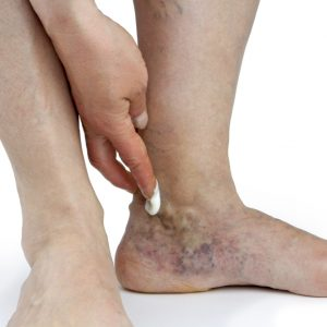 Varicose Veins Treatment 5 Sessions, include Laboratories